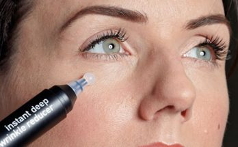 Best wrinkle fillers available on Amazon that helps to indulge forehead lines.